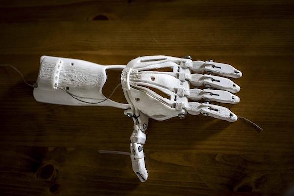 proteza-ruky